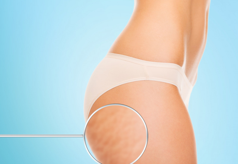 Cellulite : cause e rimedi